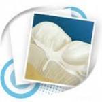 Pečatni ispuni – minimalne intervencije na zubima