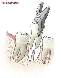 Zašto vaditi zub?