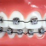 Orthodontic-conventional-braces