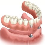 implant_anchored_overdenture