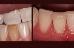 Izbjeljivanje pojedinačnog avitalnog zuba