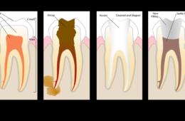 Liječenje korijenskih kanala